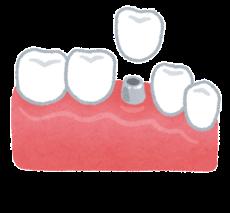 teeth_implant